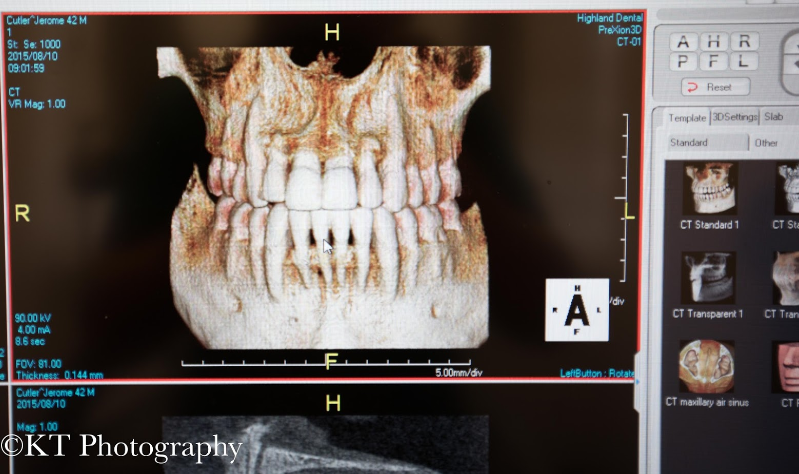 CBCT Scan Results